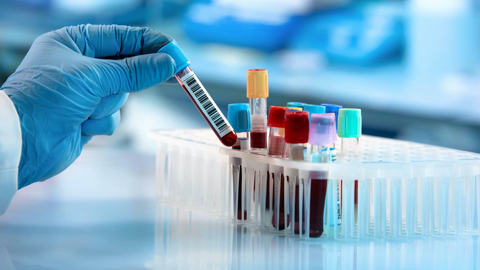Molekuláris allergia teszt